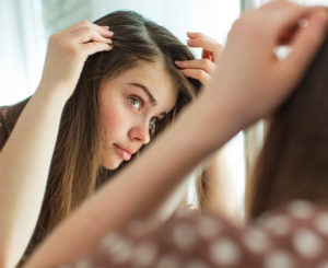 alopecia-mujer-landing-informativa-300x245